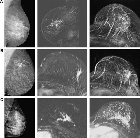 The Effectiveness of MR Imaging in the Assessment of